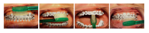 Pranje zuba sa fiksnom protrezom