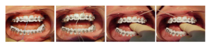 Upotreba konca za zube sa fiksnom protezom