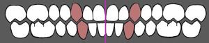 Sredina zubnih nizova se poklapa sa sredinom lica