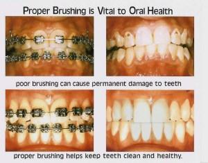Bele mrlje I karijes na zubima nakon skidanja fiksne proteze