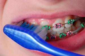Pranje zuba sa fiksnom protezom